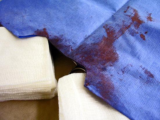 Как отстирать кровь с белого, цветного, с одежды, мебели, пола и других поверхностей